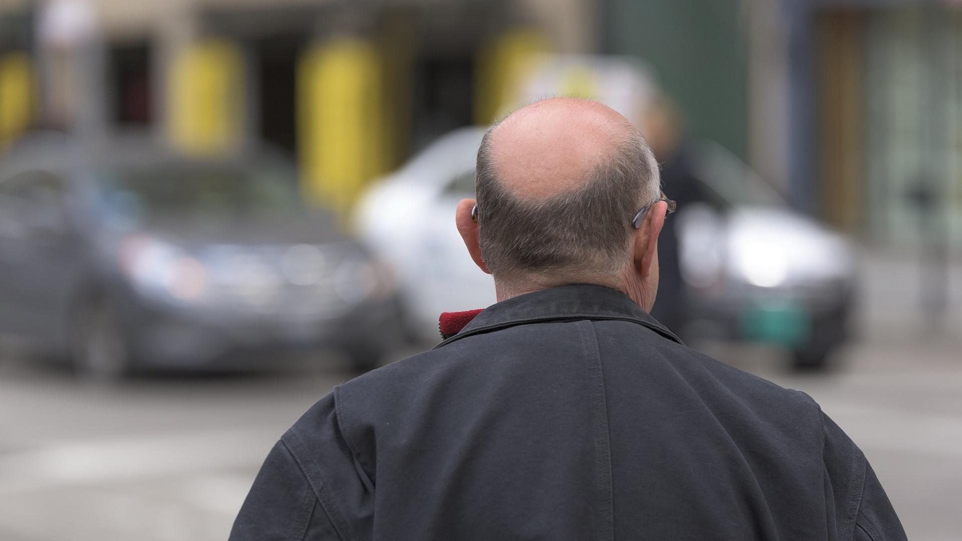 Que faire en cas de chute de cheveux ?